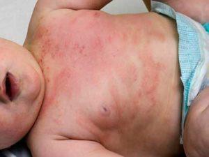 atopicheskij-dermatit-u-detej-foto