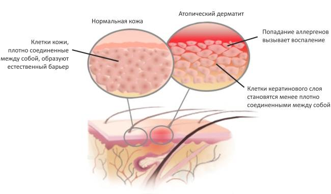 atopicheskij-dermatit-u-vzroslyh-lechenie