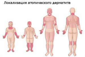 obostrenie-atopicheskogo-dermatita