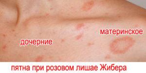 rozovyj-lishaj-zhibera-foto