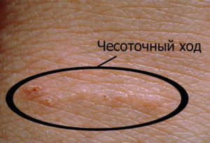 chesotka-na-rukah