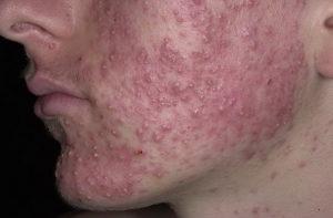 Себорея кожи головы фото 8