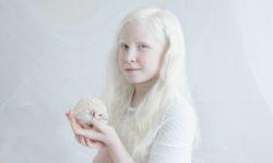 albinizm-foto