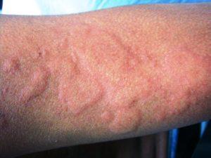allergicheskaya-krapivnitsa-foto