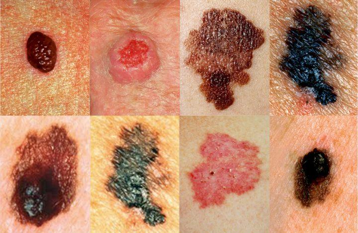 Раковые родинки (меланомы): фото