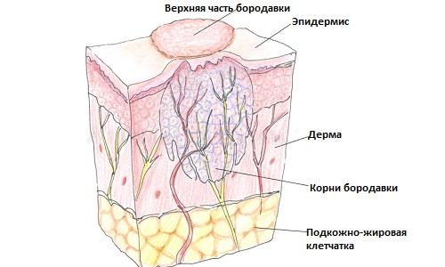 stroenie-borodavok