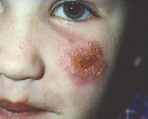 Фото воспалений у детей