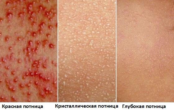 vidy-potnitsy-lechenie-u-vzroslyh
