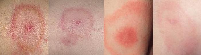 Розовое пятно вокруг укуса при клещевом боррелиозе (фото)Розовое пятно вокруг укуса при клещевом боррелиозе (фото)