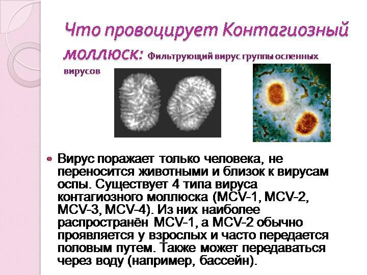Контагиозный моллюск по МКБ 10