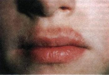allergicheskij