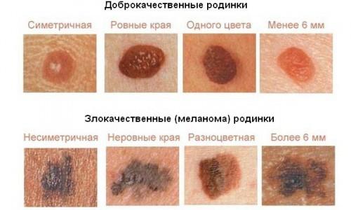 atlas-po-dermatoskopii