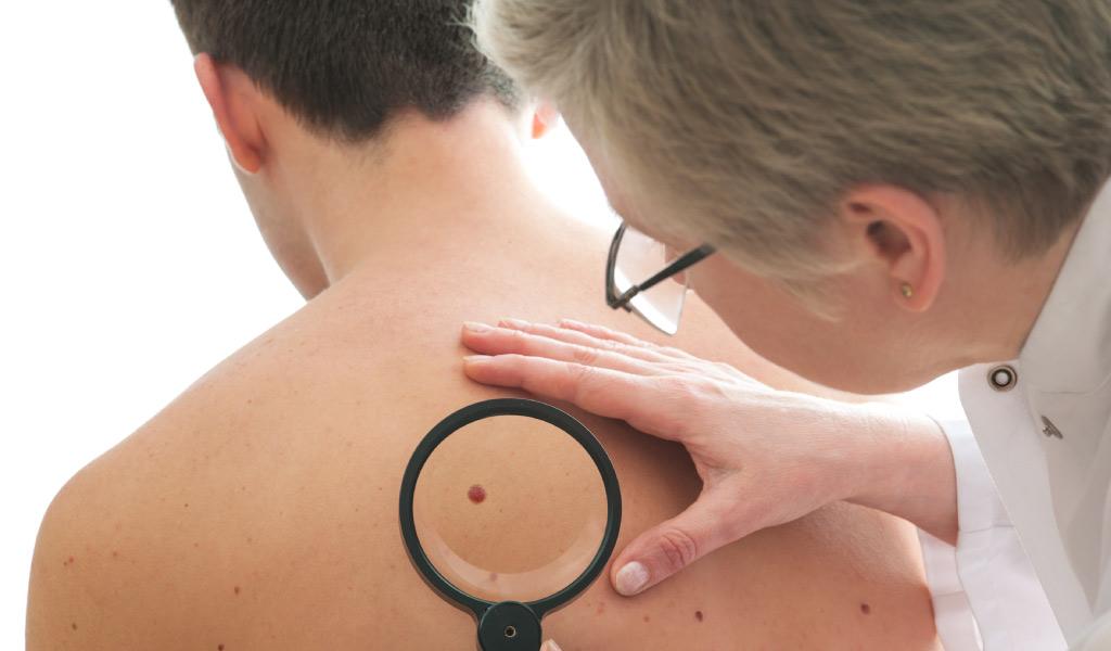 dermatoskopiya-issledovanie-rodinok