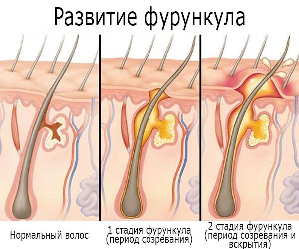 stadii-furunkula