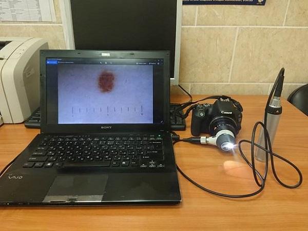 tsifrovaya-dermatoskopiya