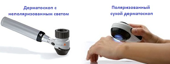 vidy-dermatoskopov