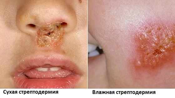 vidy-streptodermii-foto