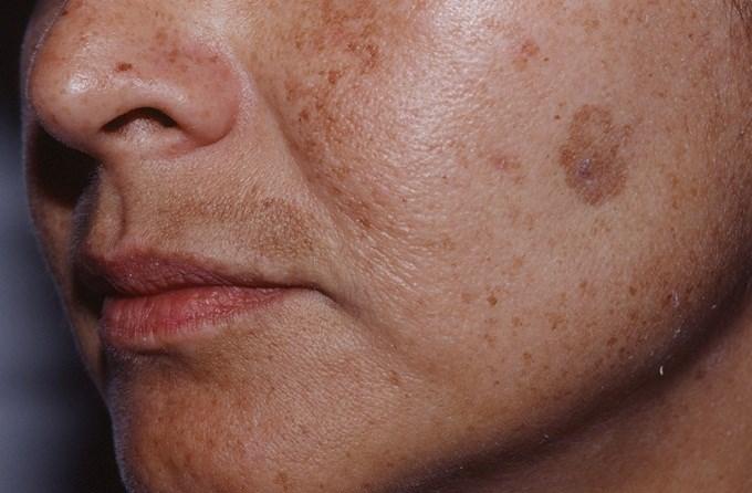 Лентиго на лице: фото