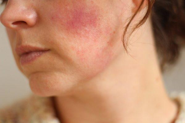 Атрофия кожи после гормональных мазей: фото
