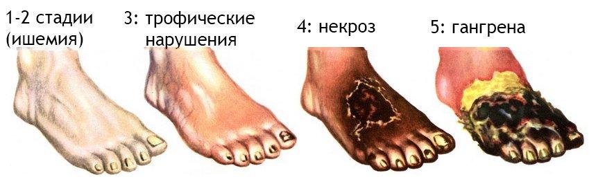 Стадии болезни: от начальной до самой крайней
