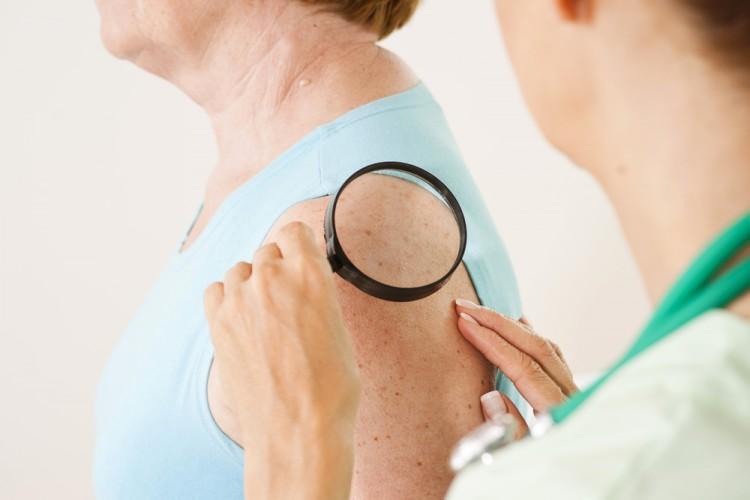 diagnostika-sklerodermii