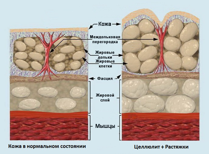 kozha-s-rastyazhkami-stroenie