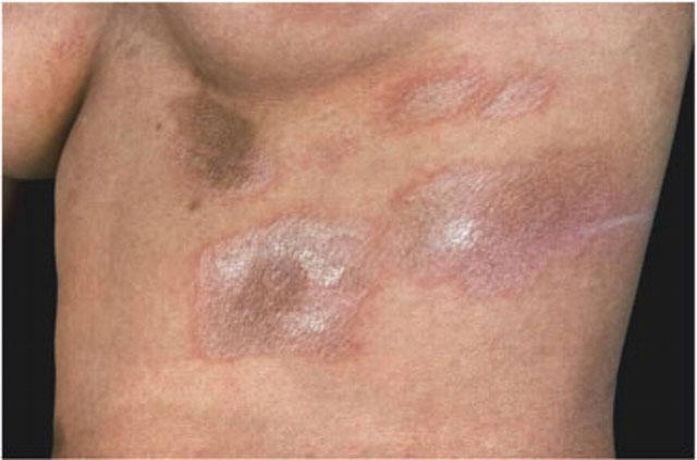 Склеродермия: фото пятен