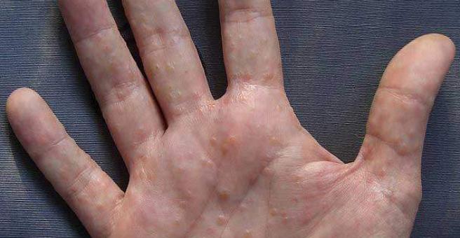 disgidroz-kistej-ruk-lechenie