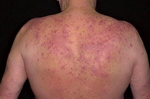 eozinofilnyj