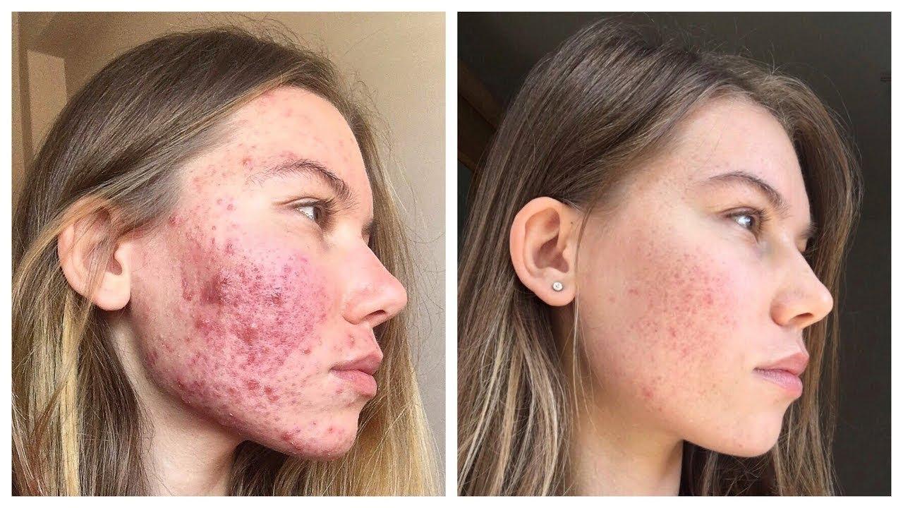 Фото до и после лечения Зинеритом
