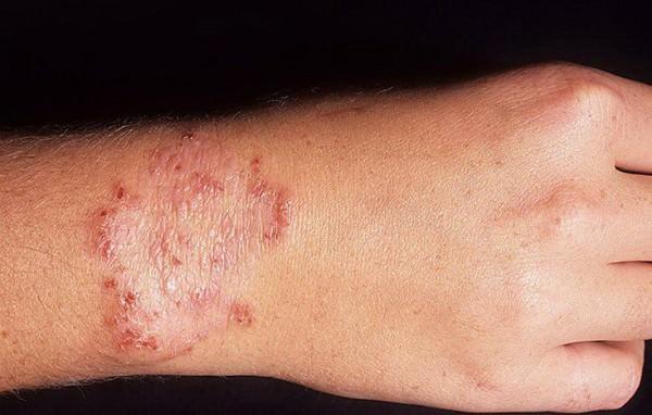 dermatomikoz