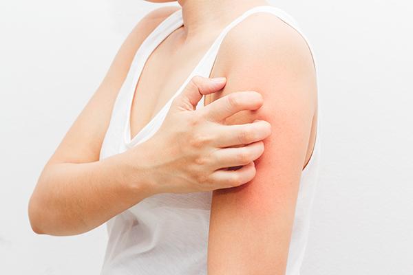 zud-dermatit