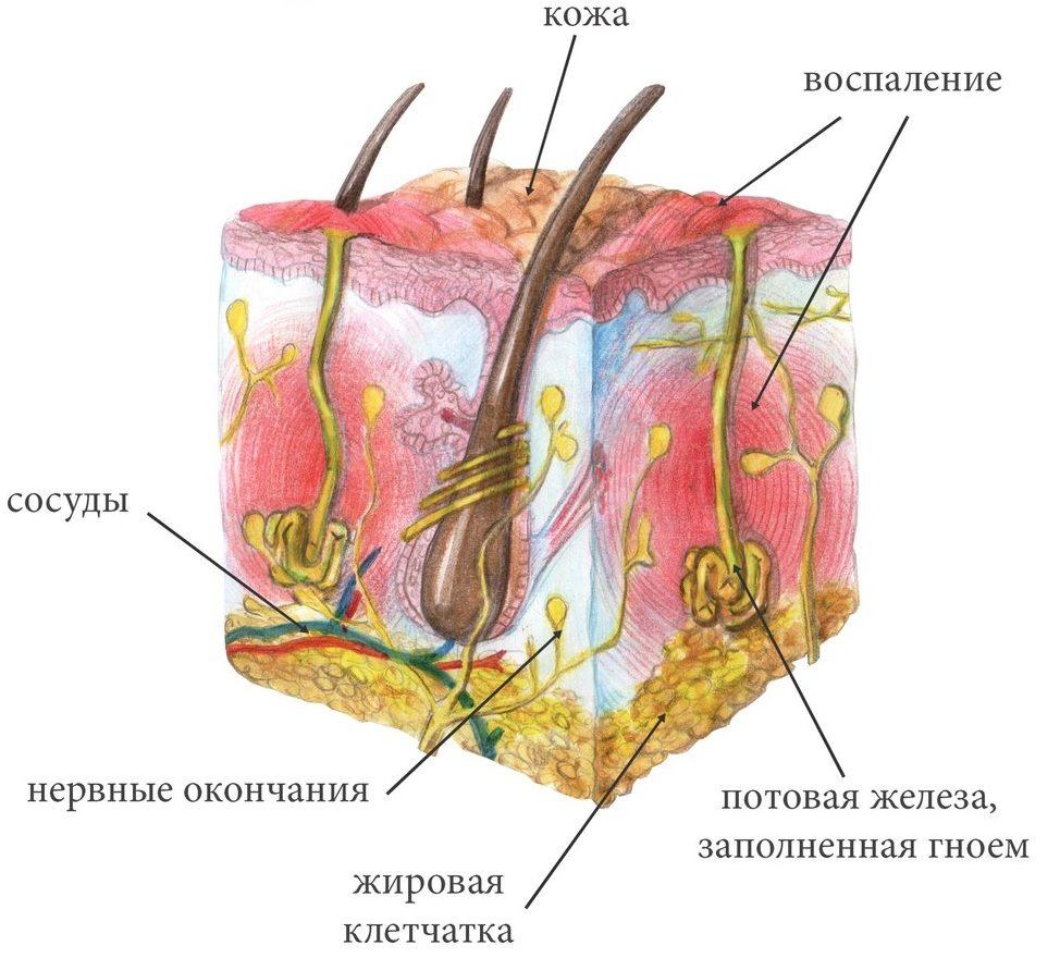 suchje-vymya-pod-myshkoj