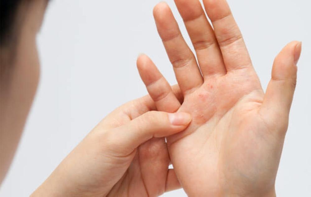 allergiya-na-aktovegin