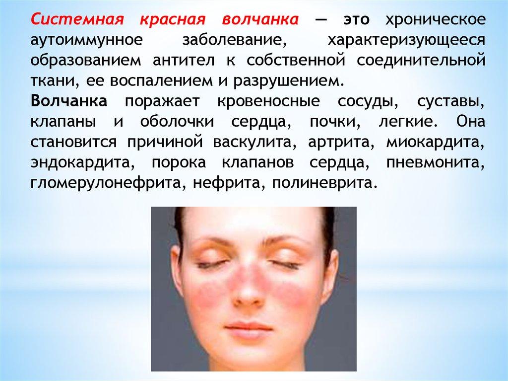 prichiny-volchanki