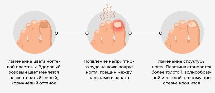 pervye-simptomy